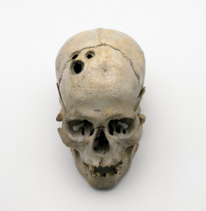 A multiply trepanned skull from Jericho, Palestine. Source: Science and Society/Creative Commons